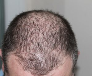 Why is Hair Loss More Common in Men than Women